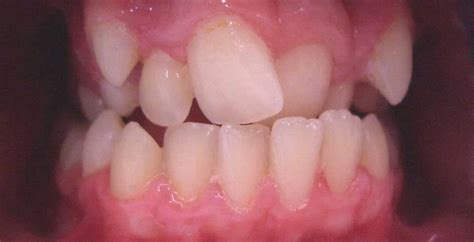 Gum Lifts - Reshaping and Contouring Newcastle - Cardiff