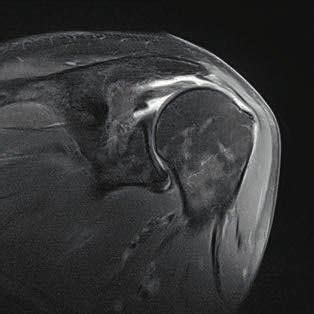 MRI, coronal section, T2-weighted image of the rotator