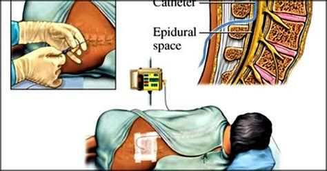 Epidural Analgesia For Labor: Why Is It Done And What Are